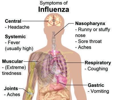 Flu_A